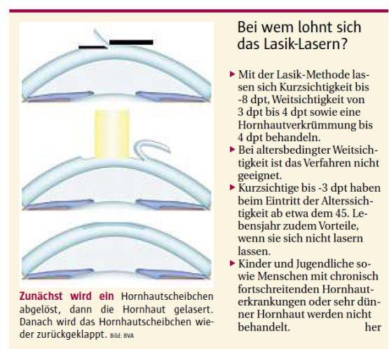 Laser orientiert sich an Landkarte des Auges