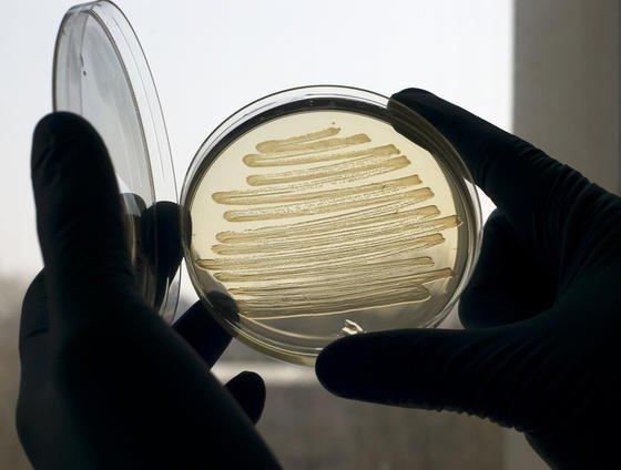 Britische Forscher zeigten in Laborversuchen, dass gentechnisch veränderte Darmbakterien Dieselkraftstoff herstellen können.