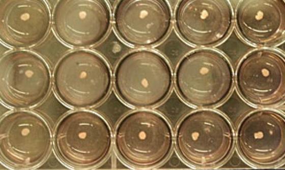 """Japanische Forscher züchteten aus menschlichen pluripotenten Stammzellen """"Knospen"""" aus Lebergewebe, die anschließend einer Maus implantiert wurden."""