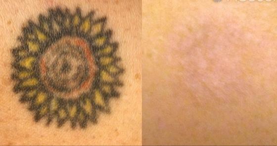 Fast als wäre das Tattoo nie da gewesen: Der neue Speziallaser entfernt Tätowierungen beinahe ohne Spuren zu hinterlassen.