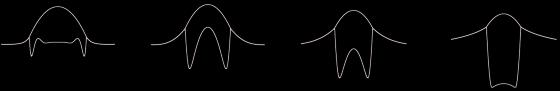 So entwickelt sich ein Tropfen: Die Entwicklung endet, wenn der Tropfen seine linsenfömige Gleichgewichtsform erreicht hat, oder wie in dem gezeigten Beispiel die untere Flüssigkeitsschicht sehr dünn ist. In diesem Fall bleibt der Tropfen instabil.