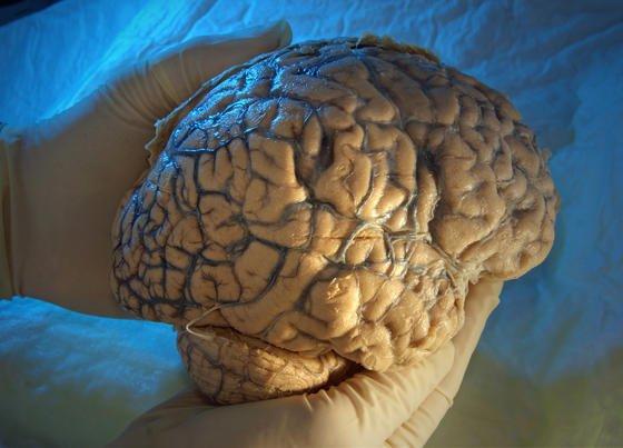 Britischer Wissenschaftler arbeiten an einer Alzheimer-Pille, die das Absterben von Gehirnzellen verhindern soll.