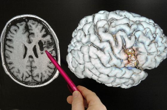 Schichtaufnahme eines Gehirns mit einem Magnetresonanztomographen: US-Forscher haben festgestellt, dass die Hirnzellen von Mann und Frau unterschiedlich vernetzt sind. Darin sehen die Wissenschaftler die Ursache für die unterschiedlichen Eigenschaften von Männern und Frauen.
