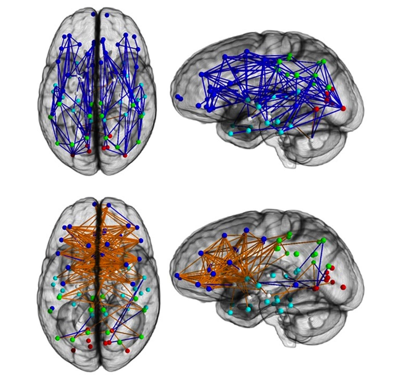 Sie machen den großen Unterschied zwischen Mann und Frau: Netzwerke im Gehirn von Männern sind anders strukturiert (oben) als von Frauen (unten). Die blauen Linien stehen für Verknüpfungen innerhalb einer Gehirnhälfte, orange dargestellt sind Verknüpfungen zwischen zwei Gehirnhälften.
