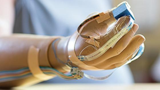 Die neue Nervenschnittstelle gibt dem Träger der Prothese ein Tastgefühl an 20 Punkten seiner künstlichen Hand.