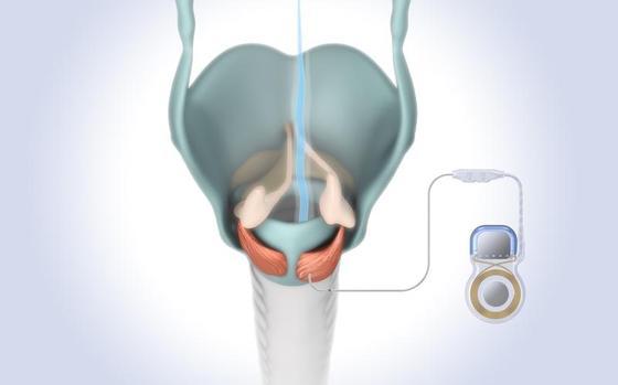 Schrittmacher für den Kehlkopf bringt Luft zum Atmen - ingenieur.de