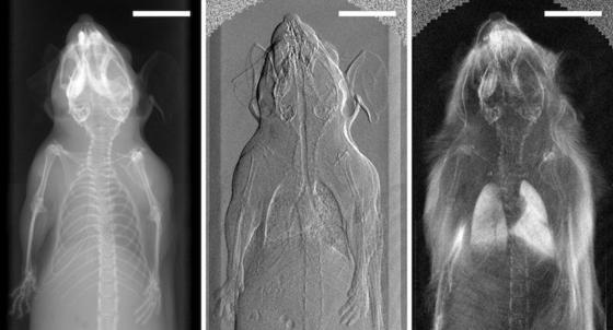 Erste In-Vivo-Phasenkontrasttomographie einer Maus: Während sich auf dem klassischen Röntgenbild (links) kein Weichteil erkennen lässt, zeigen die Phasenkontrastbilder deutlich den Zustand der Lunge. Bislang liefert solche Aufnahmen nur ein teurer Magnetresonanztomograph.