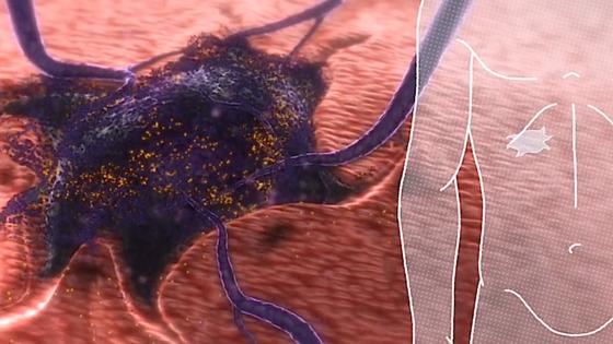 Die Nanopartikel lassen sich mit einer Spritze injizieren. Sie binden sich an die Oberfläche des Tumors und zerstören ihn über einen längeren Zeitraum mit gespeicherter Radioaktivität.