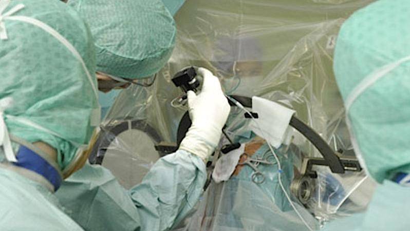 Während der Operation erlaubt es der stereotaktische Rahmen am Kopf des Patienten, Kerngebiete des Gehirnes durch ein kleines Bohrloch im Schädel mit einer Genauigkeit von weniger als einem Millimeter zu erreichen.