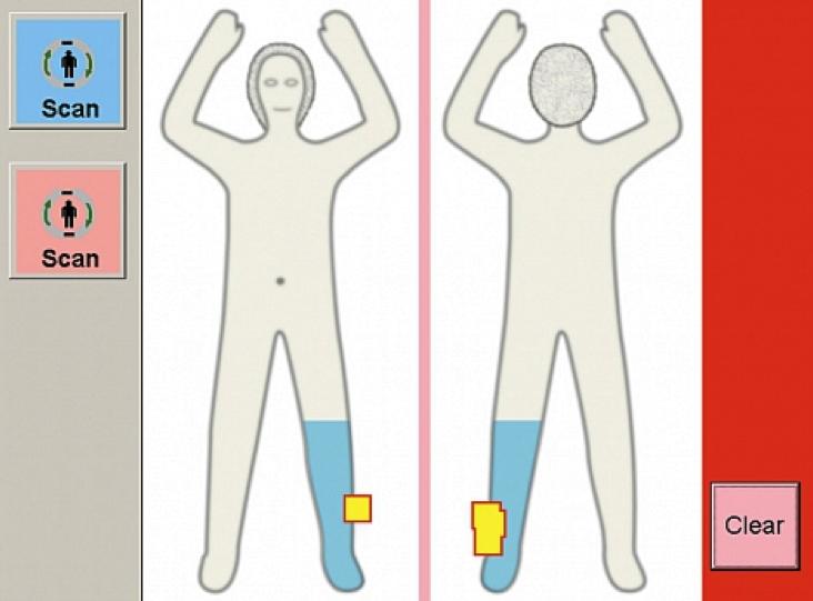 Der Scanner ProVision zeigt im Bild nur eine schematische Darstellung des Körpers. Verdächtige Bereiche markiert er gelb.