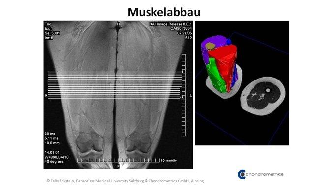 Bildliche Darstellung des Muskelabbaus.