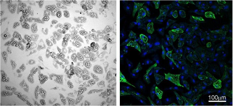 Schlankmacherfett: Braune Fettzellen, hier fluoreszierend, geben verstärkt Energie in Form von Wärme ab.