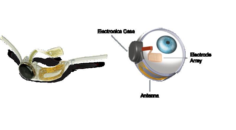Die Bestandteile des Implantats.