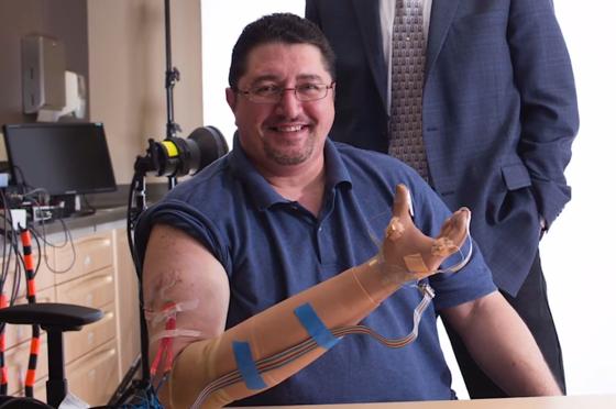 Mit der Prothese der US-Forscher kann der Patient an 19 Stellen fühlen. Er kann Kraft genau dosieren und sogar Trauben pflücken, ohne sie dabei zu zerquetschen.