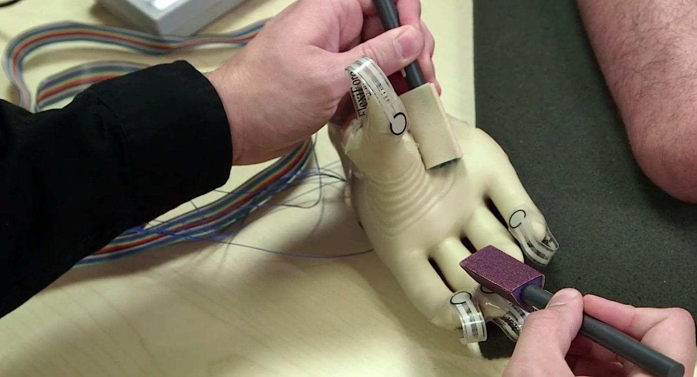 Die Kunsthand wird über Manschetten mit dem amputierten Oberarm verbunden. Eine Verbindung zum Nervensystem leitet Informationen ans Gehirn weiter. Der Patient kann dann sogar Materialien wie Sandpapier erkennen.