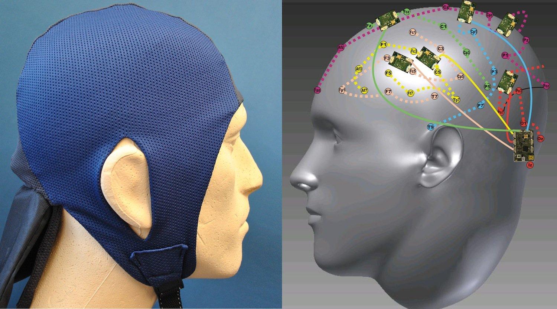 Das Sensorsystem der Forscher lässt sich in eine alltagstägliche Mütze integrieren. Überflüssig wird das Festkleben der Elektroden am Kopf, ebenso wie klobige externe Datenspeicher.