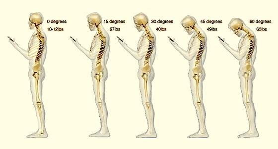 Nicht auf Augenhöhe: Smartphone-Nutzer schauen meist mit gesenktem Kopf auf das Display. Das belastet – je größer die Neigung des Kopfes, desto mehr Gewichtdrückt auf den Nacken.