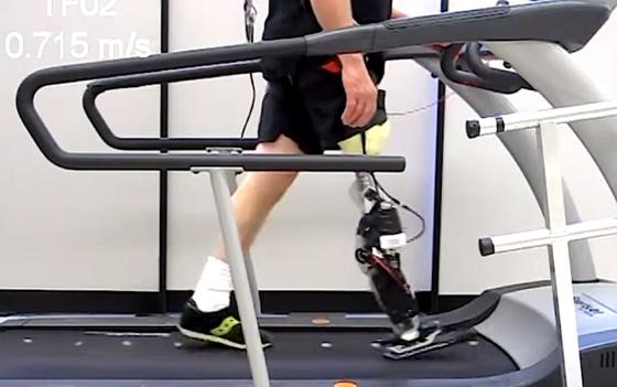 Proband auf dem Laufband: Die motorisierte Beinprothese erahnt Punkte im Gangzyklus – dank einer intelligenten Steuerung, die bislang bei humanoiden Robotern zum Einsatz kommt.