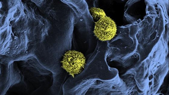 Die Stammzellen, hier durch ein Raster-Elektronenmikroskop gesehen, haften locker in einer Gerüststruktur, die als Basis für künstliches Knochenmark dient.