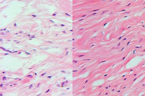 Ausschnitt aus dem ursprünglichen Gerüst des Meniskus im Vergleich mit dem Meniskus, in dem bereits neue Zellen herangewachsen sind.