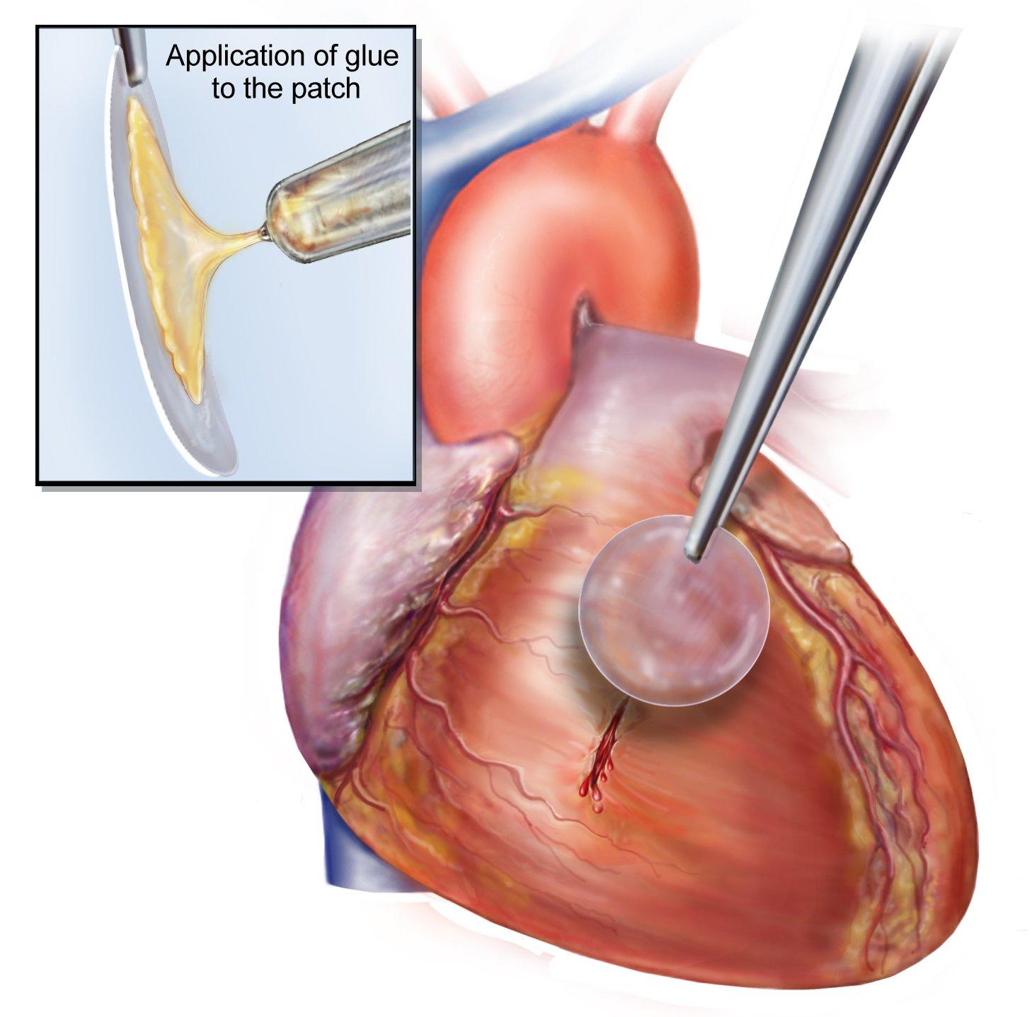 Klebstoff-Flicken fürs Herz: Bei Tierversuchen konnten mit kleberbeschichteten Patches bereits Defekte in der linken Herzkammer ohne zusätzliche Nähte verschlossen werden. Das Material hielt dem hohen Druck stand, mit dem Blut durch Herz und Gefäße gepumpt wird.
