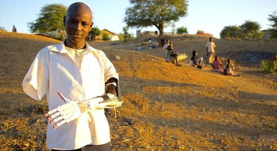 Die Robohand konnte schon vielen Bedürftigen in Kriegsgebieten helfen: Sie lässt sich für 50 US-Dollar produzieren. Herkömmliche Prothesen kosten hingegen schnell bis zu 25.000 US-Dollar.
