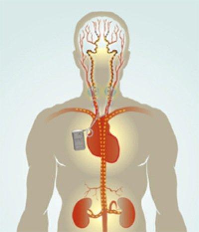 Die Energieversorgung des Stimulatorserfolgt über eine Batterie, die unterder Haut ähnlich wie ein Herzschrittmacherimplantiert wird.