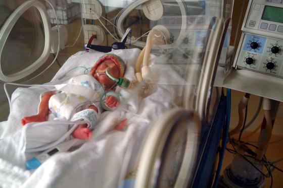Ein Frühchen liegt in der Geburtsklinik Berlin Neuköln in einem Brutkasten. Bislang bieten diese sogenannten Inkubatoren lediglich Wärme. Der künstliche Uterus soll der natürlichen Gebärmutter sehr viel ähnlicher sein.