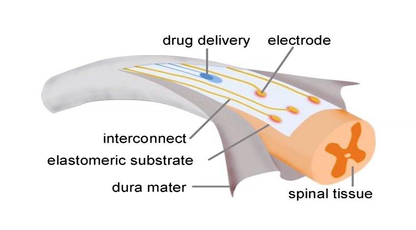 Interdiszipinär: In die Entwicklung des Implantats flossen Kenntnisse aus Materialwissenschaft, Elektronik, Neurowissenschaften, Medizin und die Programmierung von Algorithmen.