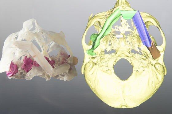 In der Klinik für Mund-, Kiefer- und Gesichtschirurgie (MKG) der Universitätsmedizin Mainz entstehen individuelle dreidimensionale Patientenmodelle aus dem eigenen 3D-Drucker, die selbst kleinste anatomische Strukturen wie fein verästeltes Knochengewebe abbilden. Anhand dieser Modelle können die Mediziner beispielsweise durch Tumorleiden bedingte Kiefer-, Kopf- oder Gesichtsrekonstruktionen operativ besser planen und Transplantate präziser anpassen.