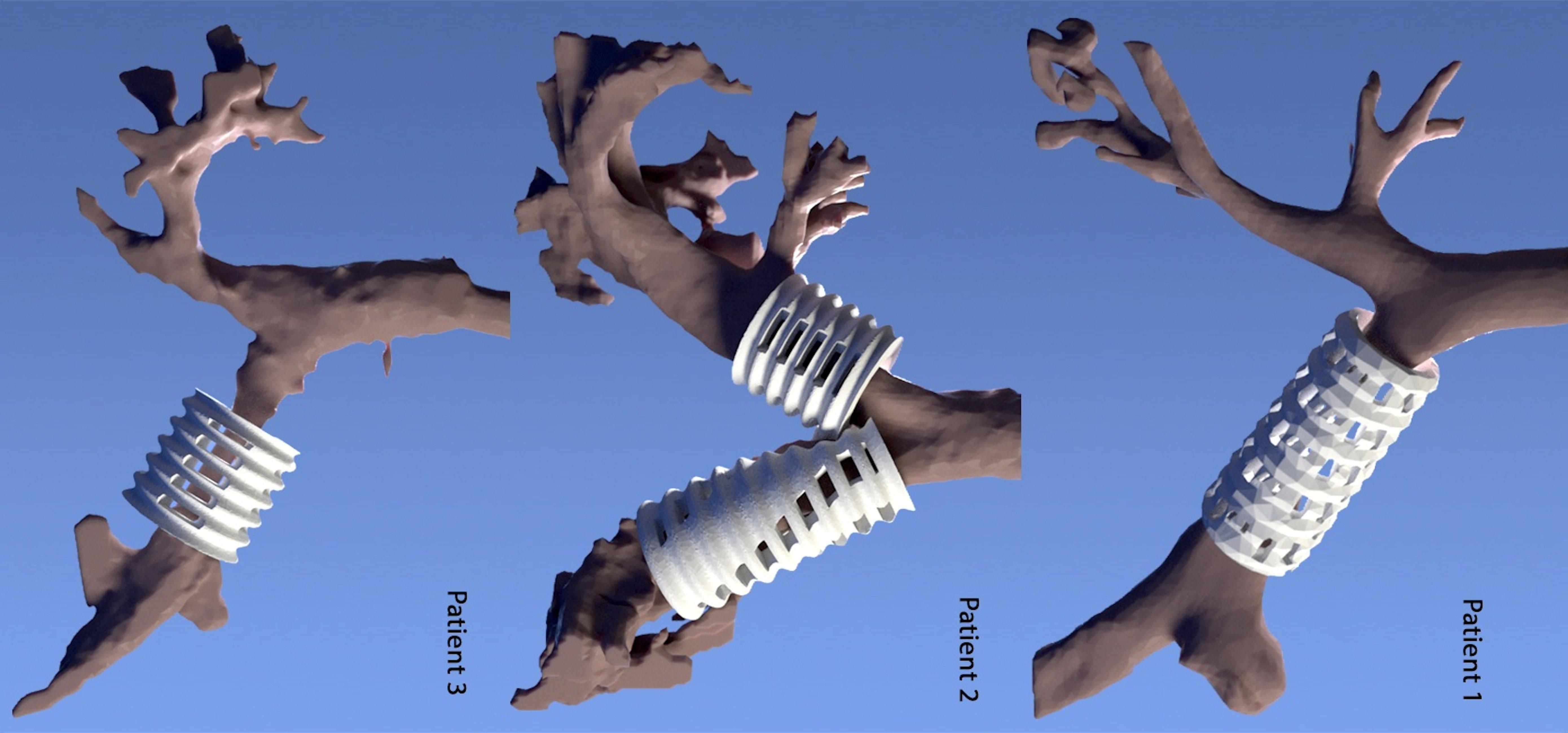Die Implantate werden individuell an die Luftröhre der Kinder angepasst und vernäht. Ähnlich wie ein Exoskelett verhindern sie, dass die instabilen Luftröhren zusammen fallen.