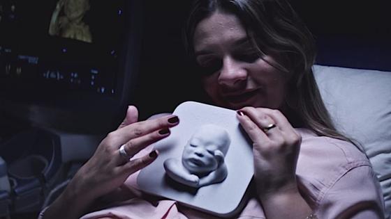 Die blinde Tatiana ertastet zum ersten mal ihr ungeborenes Baby: Der Arzt hatte während der Ultraschalluntersuchung heimlich ein 3D-Ausdruck angefertigt.