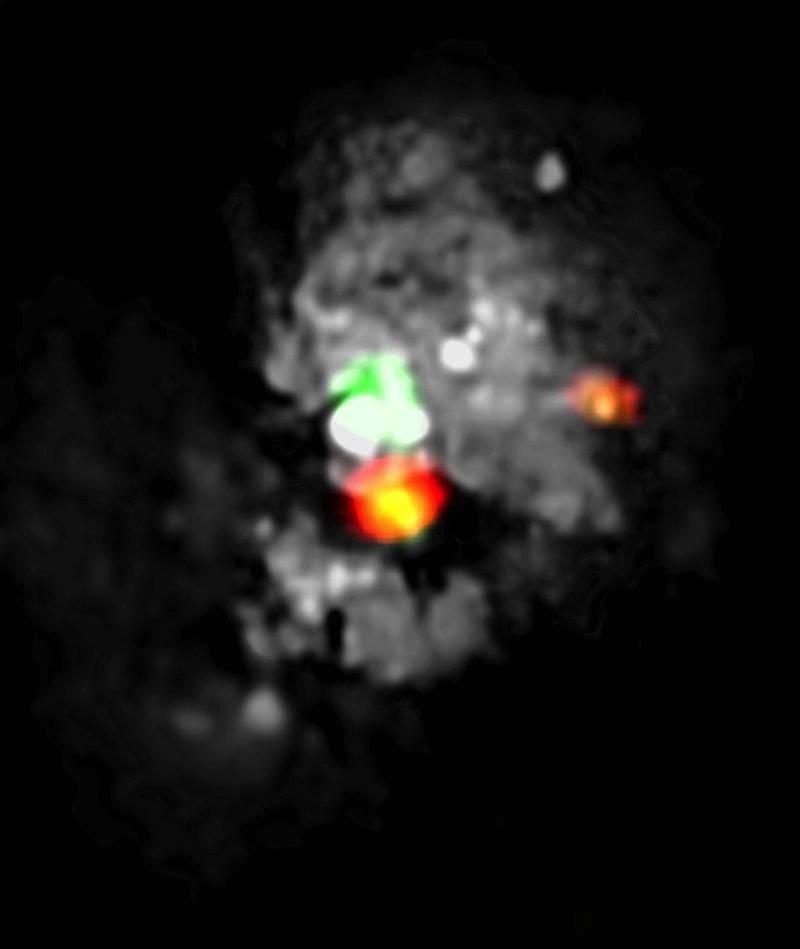 """Blick ins Unbekannte: Mit dem Noema-Observatorium haben Wissenschaftler eine bisher unerforschte Region massiver Sternentstehung im Medusa Merger (NGC 4194) ausfindig gemacht. Das Bild, das Beobachtungen mit Noema und dem Hubble Space Teleskop beinhaltet, zeigt das """"Auge der Medusa"""" (orange), das sich direkt unterhalb des Zentrums von NGC 4194 befindet (hier weiß und grün), einem Paar kollidierender Galaxien."""
