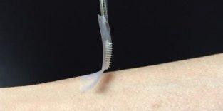 Insulinpflaster aus den USA soll die Spritze ersetzen