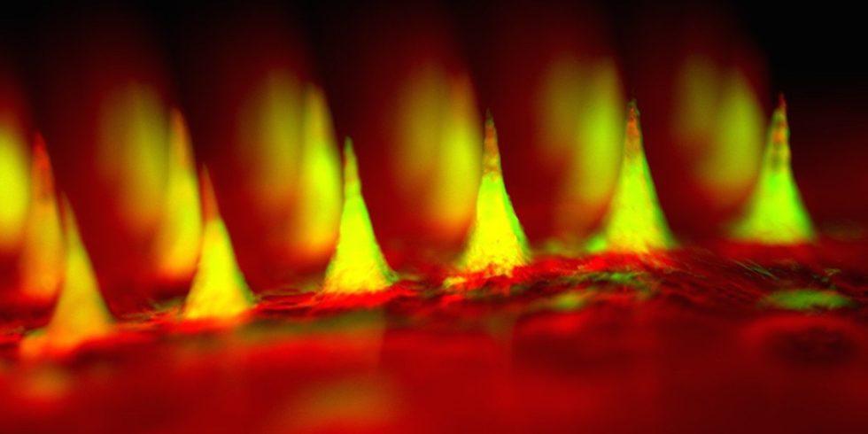 Nahaufnahme der Mikronadeln: Das Insulin (grün) befindet sich in winzigen Bläschen. Die Bläschenwand löst sich auf, wenn der Blutzuckergehalt einen Grenzwert überschreitet.