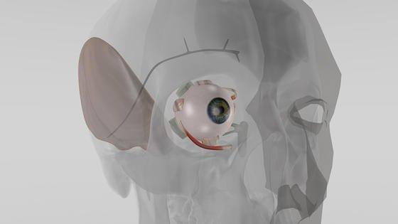 Illustration der implantierten Miniaturpumpe: Sie reguliert automatisch den Augeninnedruck und schützt vor Erblindung.