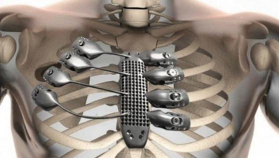 Aus dem 3D-Drucker stammen Brustbein und Rippen ausTitan, die einem spanischen Krebspatienten implantiert wurden.