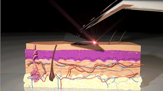 Erste Sahne: Eine Rasur mit dem Laser Razor hinterlässt keine unschönen Spuren. Weder im Gesicht, noch an sonstigen empfindlichen Stellen.Die Ingenieure habe eine Wellenlänge gefunden, die Chromophoren im Haar zerstört – die Haut bleibt unversehrt.