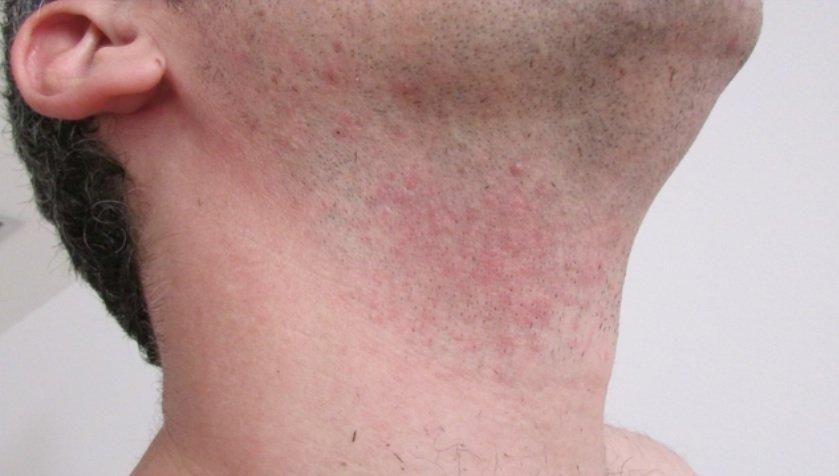 So nicht: MitIrritationen der Haut nach der Rasur soll bald Schluss sein. Statt Klingen kommt dann Laserlicht zum Einsatz.