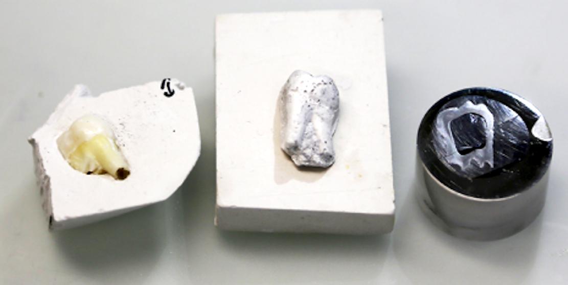 Das natürliche Vorbild in der Gipsform (l.), das Imitat aus dem neuartigen Verbundmaterial, das bereits gesintert wurde, sowie ein in einen Sockel eingepasster Kunstzahn, der für die Elektronenmikroskopie mit Platin beschichtet wurde.