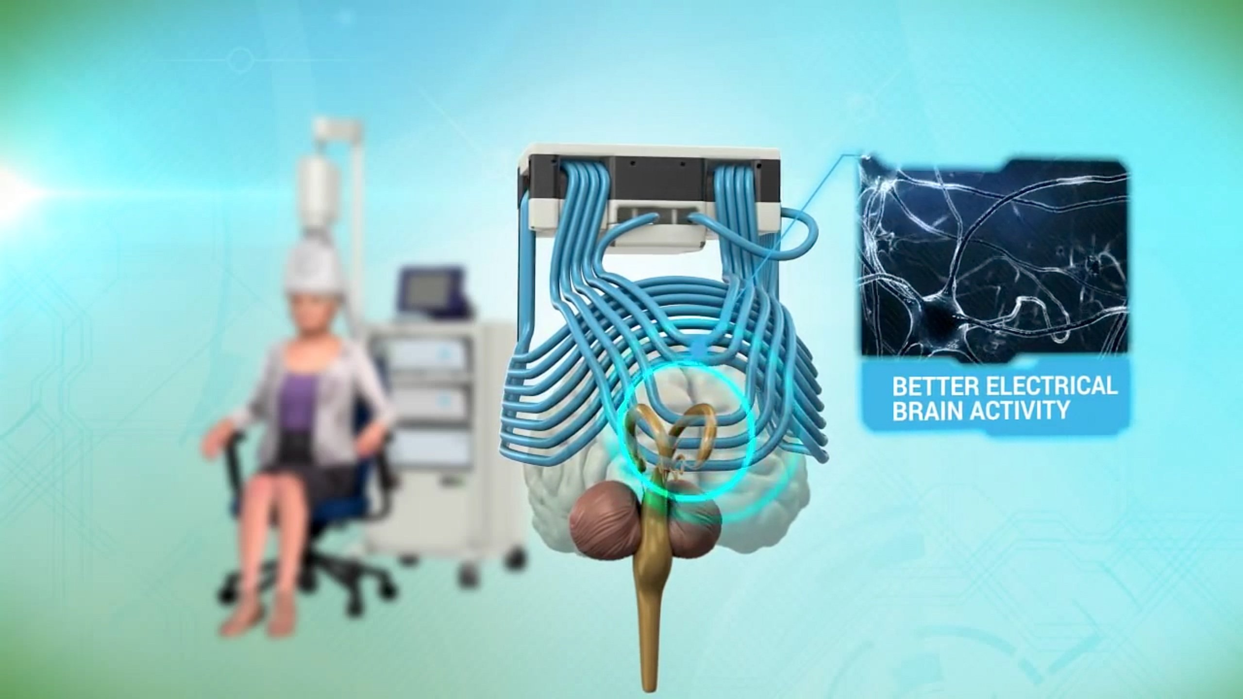 Eine Spule erzeugt an den zu behandelnden Hirnpartien Magnetfelder. Zudem werden die Hirnzellen durch leichte Stromstöße angeregt.