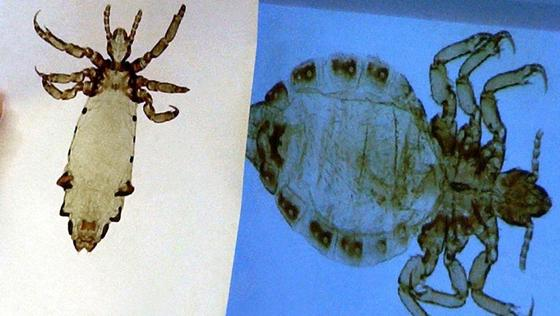 Laus ist nicht gleich Laus: Das rechte Bild zeigt eine Kopflaus vom Menschen (Pediculus humanus) und links ist eine Laus vom Schimpansen (Pediculus schaeffi) zu sehen.