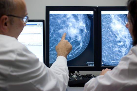 Bei Chemotherapien werden nicht nur Krebszellen getötet auch gesundes Gewebe wird beschädigt. US-Forscher haben jetzt winzige Partikel aus flüssigem Metall zur Bekämpfung von Tumoren eingesetzt, die nur das kranke Gewebe killen.