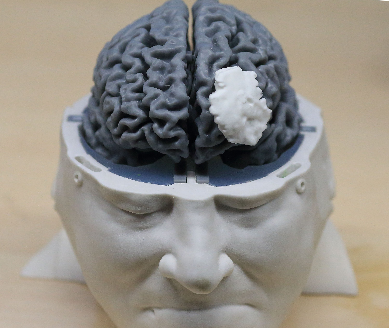 Das menschliche Gehirn verfügt über 100 Milliarden Nervenzellen.