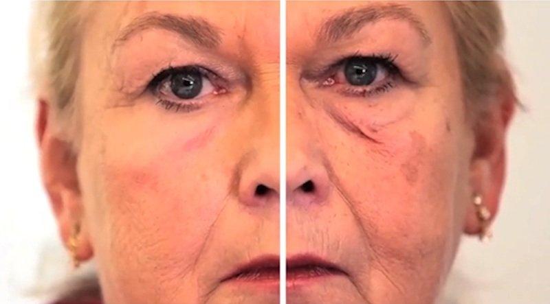 Die zweite Haut (links aufgetragen) lässt sogar Tränensäcke fast komplett verschwinden.