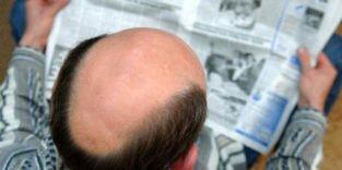 Forschern gelingt die Transplantation von Haarzellen