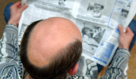 Hier könnte wieder etwas wachsen: Davon geht ein japanisches Konsortium aus, dass an der Transplantation von Haarzellen arbeitet.