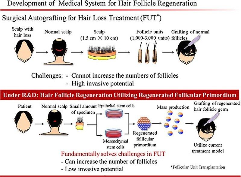 Grafische Darstellung zu den einzelnen Schritten der Haarzellentransplantation.