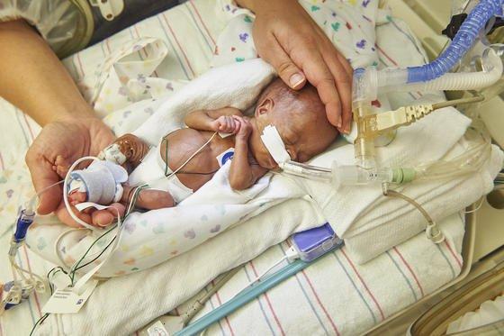 Ein zu früh geborenes Baby im Children's Hospital of Philadelphia: Die Überlebenschancen extremer Frühchen sind erheblich gestiegen. Doch nach wie vor müssen die Babys kritische Wochen überstehen. US-Forscher wollen die Kleinen in einem Beutel, einer Art künstlichen Gebärmutter, heranreifen lassen.