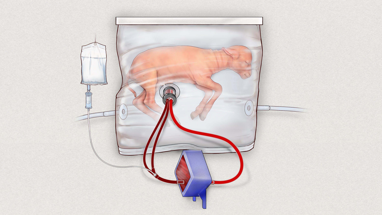 Die Illustration vom Children's Hospital of Philadelphia zeigt ein Lamm im Biobag.